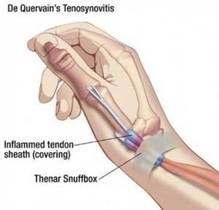 Tendon Conditions Merivale Hand Clinic